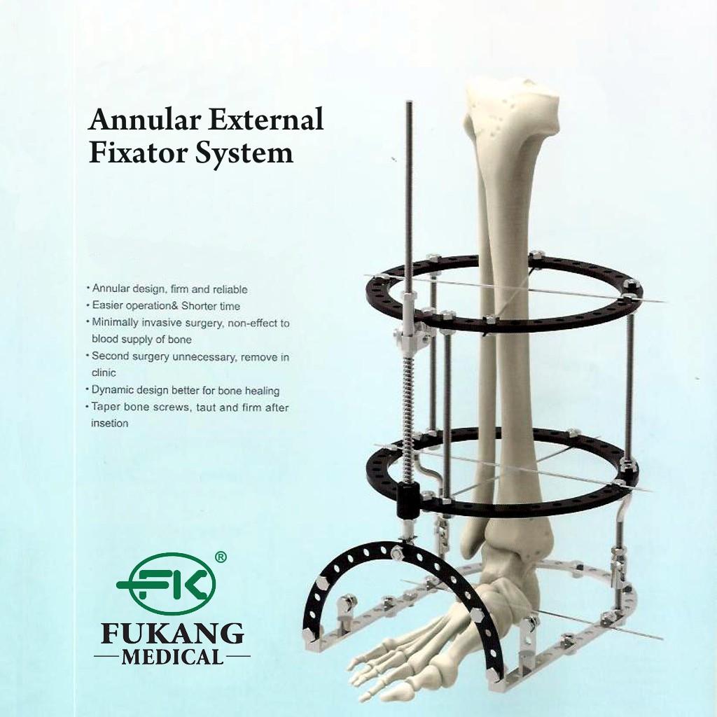 Annular External Fixator System Fiksator Eksternal Cincin