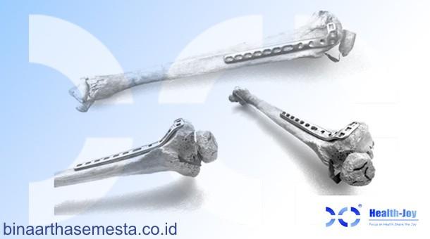 Plat Lutut & Tempurung Lutut Heng-Jie 001