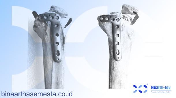 Plat Lutut & Tempurung Lutut Heng-Jie 002