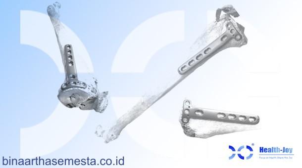 Plat Lutut & Tempurung Lutut Heng-Jie 003