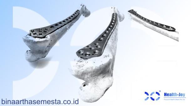 Plat Lutut & Tempurung Lutut Heng-Jie 006