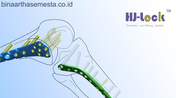 Plat Lutut & Tempurung Lutut Heng-Jie 007