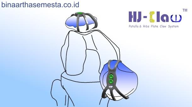 Plat Lutut & Tempurung Lutut Heng-Jie 008