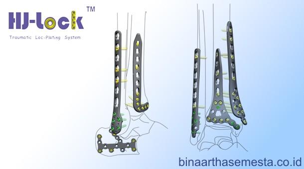 Heng-Jie Ankle & Distal Tibial - Pergelangan kaki & Tibia Distal 001