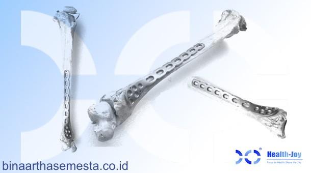 Heng-Jie Ankle & Distal Tibial - Pergelangan kaki & Tibia Distal 003