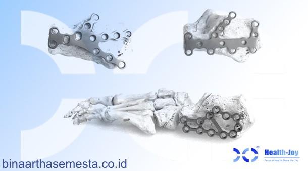 Heng-Jie Ankle & Distal Tibial - Pergelangan kaki & Tibia Distal 007